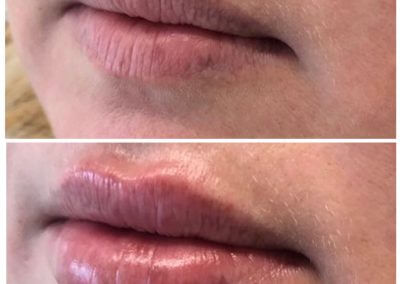 before after lip fillers (1)
