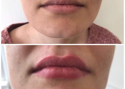 before and after lips 3
