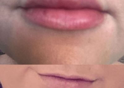 before-and-after-lips-4