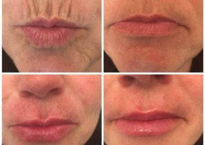 before and after perioral lines 3